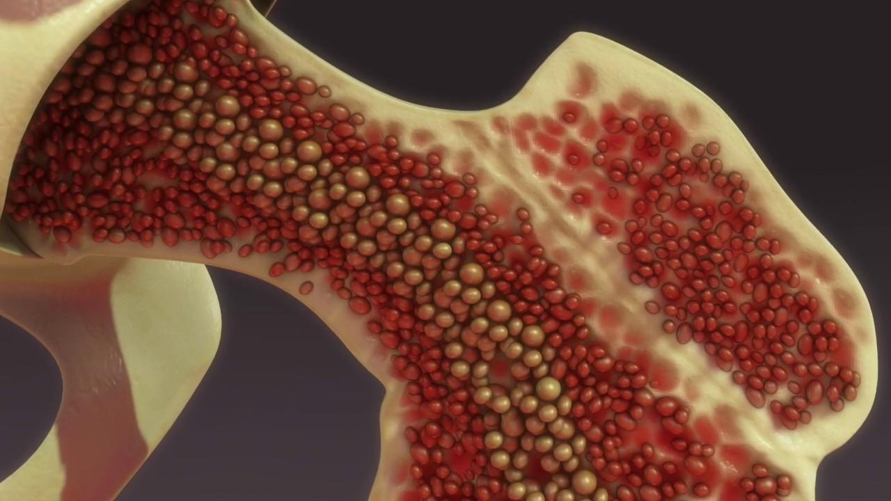 ¿Qué es y cómo mejorar la osteoporosis?